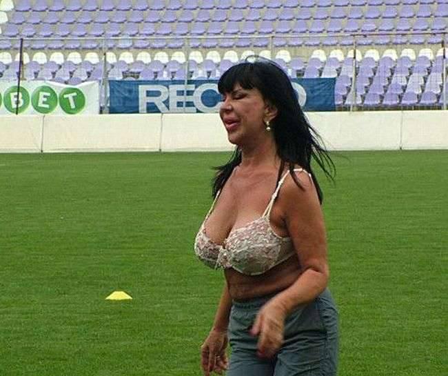 Ofiary operacji plastycznych: Maria Geronazzo 19